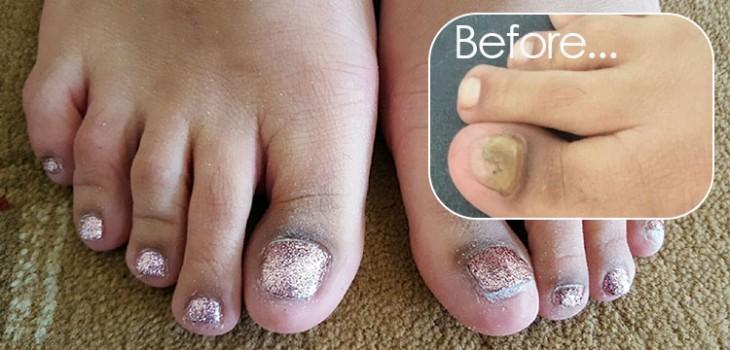 Acrylic toe nails amanda 39 s amazing nails for Acrylic toe nails salon